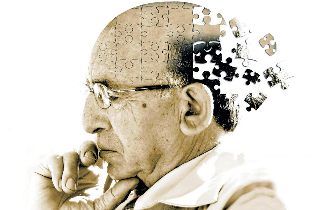 Illustration de la maladie d'Alzheimer